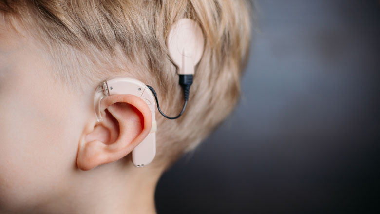 HEARING IMPLANT AND WHAT NEXT?