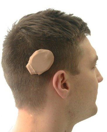Ear Gear Rondo - cordless covers for two ALL-IN-ONE processors (Rondo, Rondo 2, Samba, Kanso)
